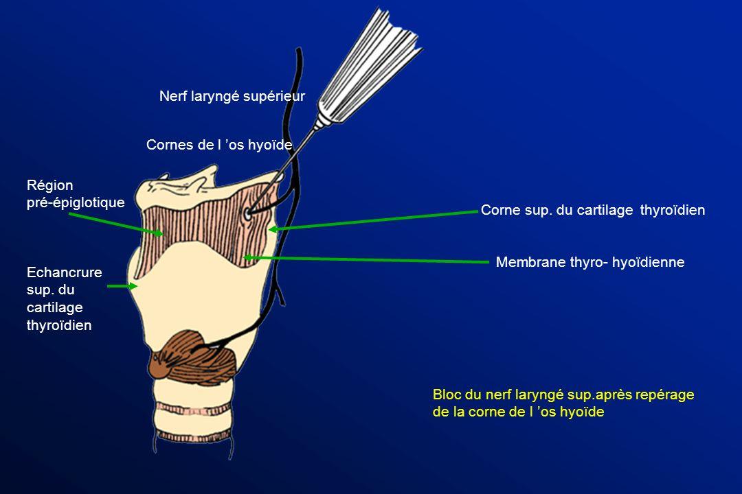 Membrane thyro- hyoïdienne Corne sup. du cartilage thyroïdien Echancrure sup. du cartilage thyroïdien Région pré-épiglotique Bloc du nerf laryngé sup.