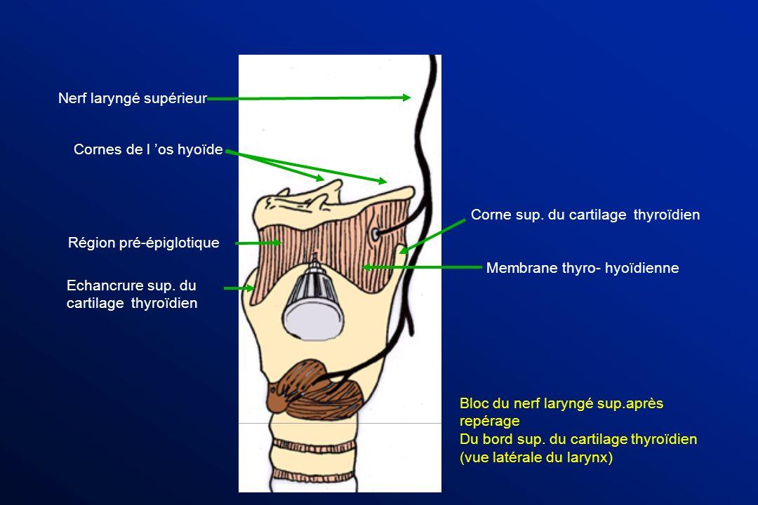 Nerf laryngé supérieur Membrane thyro- hyoïdienne Corne sup. du cartilage thyroïdien Echancrure sup. du cartilage thyroïdien Région pré-épiglotique Bl