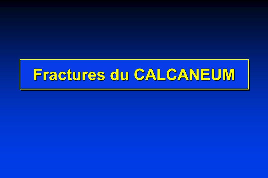 Séquelles des fractures du calcaneum Pied plat valgus traumatique - affaissement du talon - élargissement du talon
