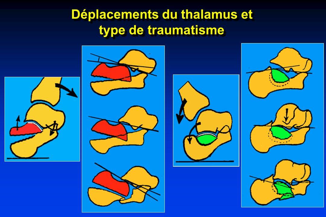 Déplacements du thalamus et type de traumatisme Déplacements du thalamus et type de traumatisme