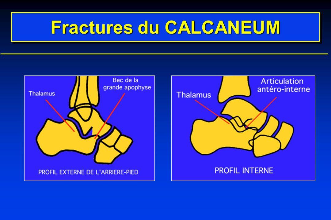 Fracture-séparation Type IIIFracture-luxation Type II Classification des fractures du calcaneum Commenter ces dessins : Nom des éléments fracturés .