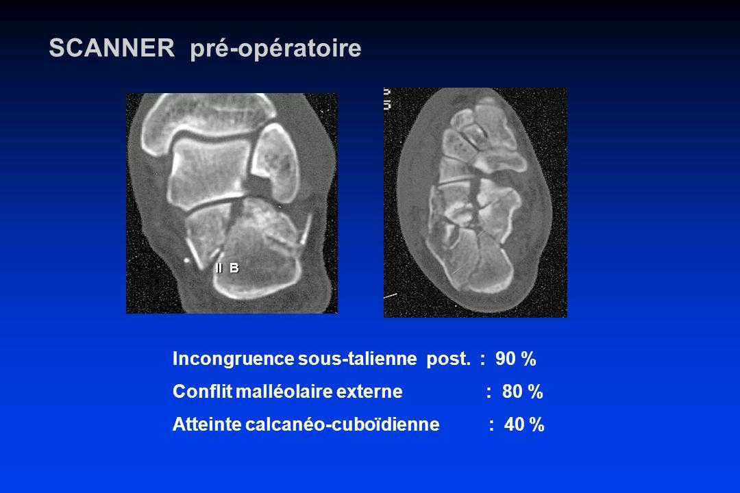 SCANNER pré-opératoire Incongruence sous-talienne post. : 90 % Conflit malléolaire externe : 80 % Atteinte calcanéo-cuboïdienne : 40 % II B