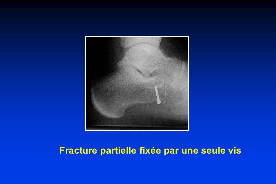 Fracture partielle fixée par une seule vis