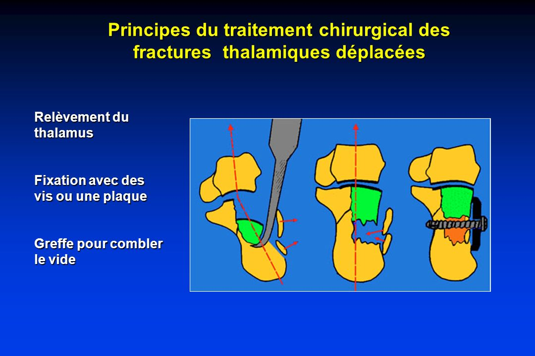 Principes du traitement des fractures thalamiques déplacées Principes du traitement chirurgical des fractures thalamiques déplacées Relèvement du thal