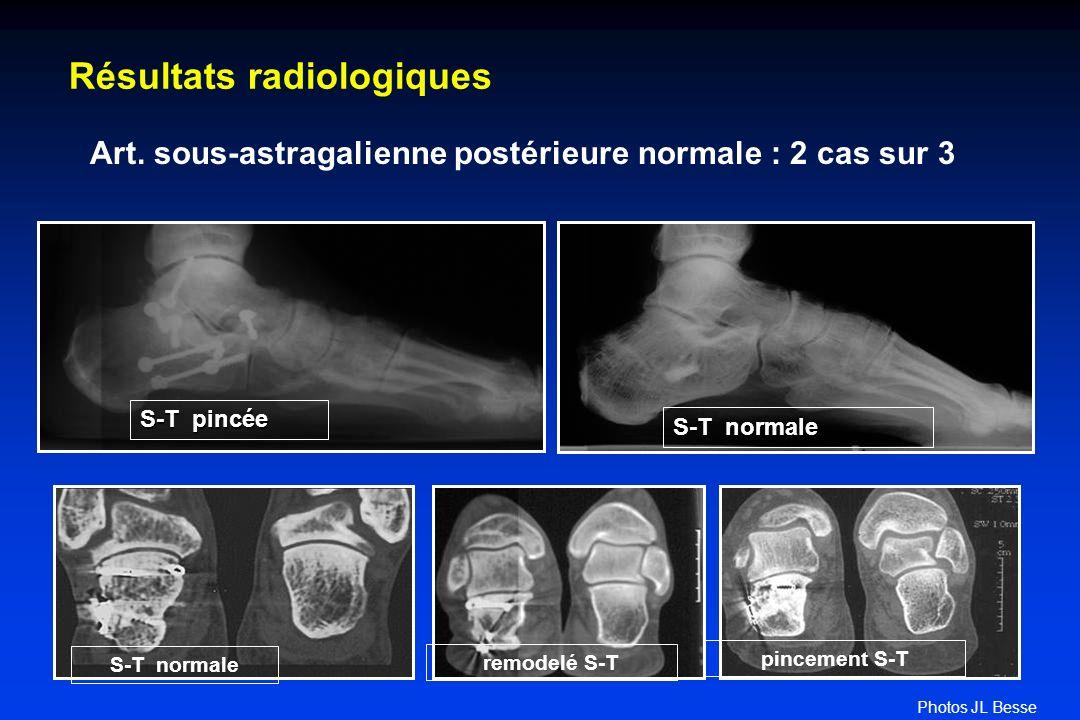Résultats radiologiques Art. sous-astragalienne postérieure normale : 2 cas sur 3 S-T pincée S-T normale pincement S-T remodelé S-T S-T normale Photos