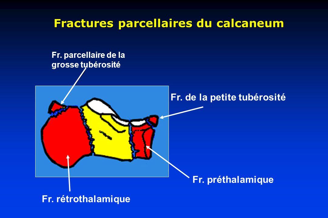 Fractures parcellaires du calcaneum Fr. parcellaire de la grosse tubérosité Fr. rétrothalamique Fr. de la petite tubérosité Fr. préthalamique