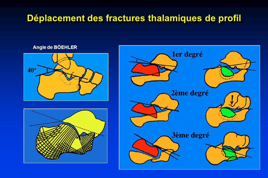 Enfoncement horizontal Angle de BÖEHLER Déplacement des fractures thalamiques