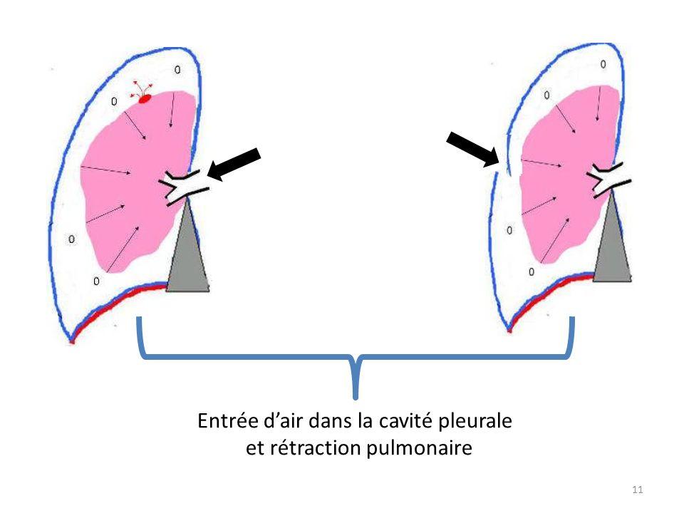 11 Entrée dair dans la cavité pleurale et rétraction pulmonaire