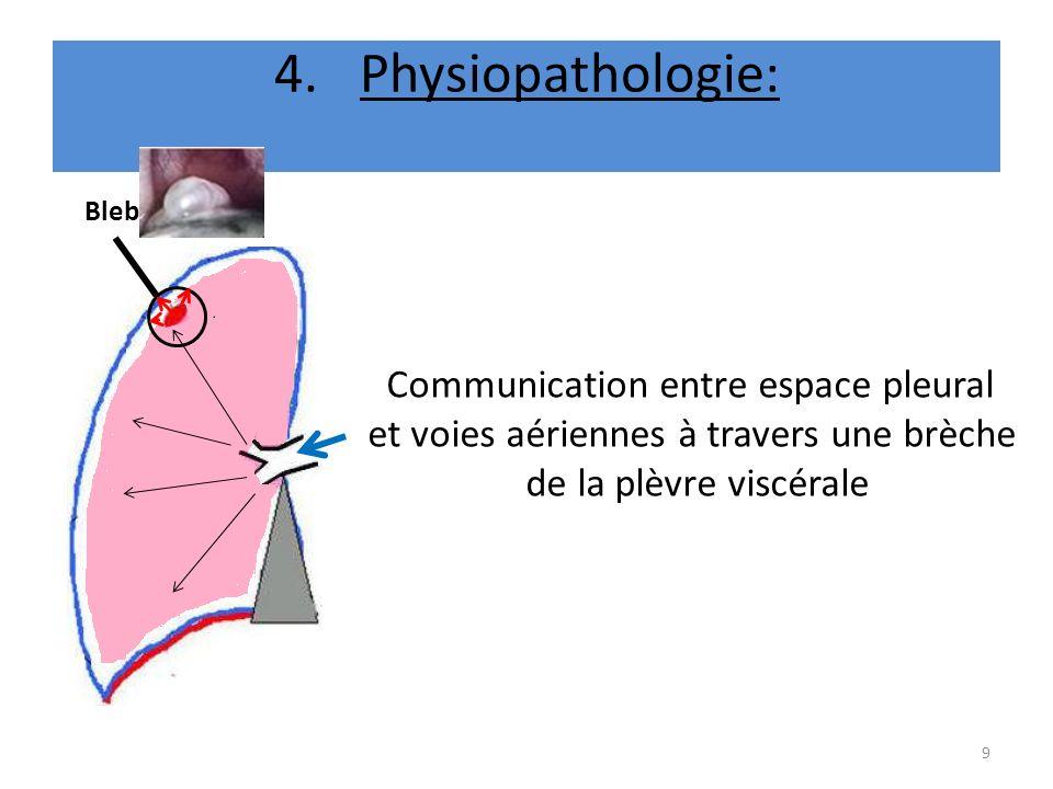 4.Physiopathologie: Communication entre espace pleural et voies aériennes à travers une brèche de la plèvre viscérale 9 Bleb