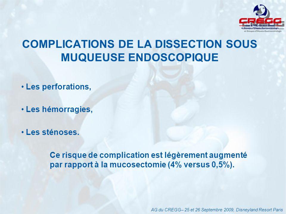 COMPLICATIONS DE LA DISSECTION SOUS MUQUEUSE ENDOSCOPIQUE Les perforations, Les hémorragies, Les sténoses.