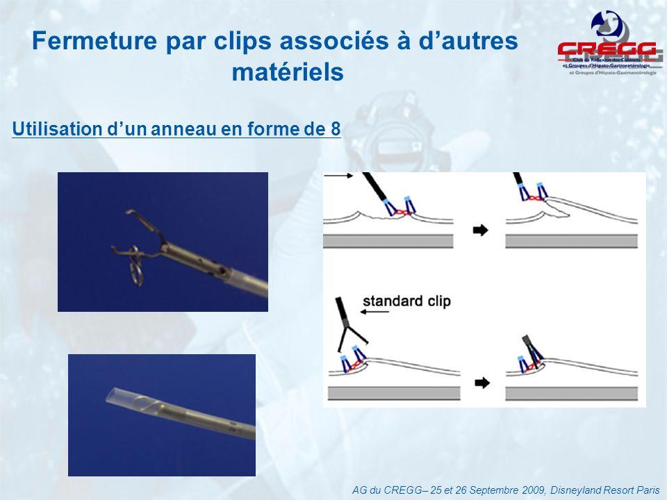 Fermeture par clips associés à dautres matériels Utilisation dun anneau en forme de 8 AG du CREGG– 25 et 26 Septembre 2009, Disneyland Resort Paris