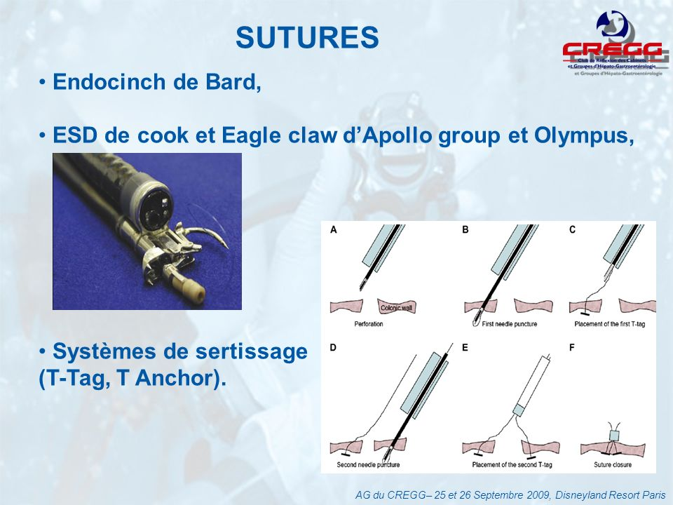 SUTURES AG du CREGG– 25 et 26 Septembre 2009, Disneyland Resort Paris Endocinch de Bard, ESD de cook et Eagle claw dApollo group et Olympus, Systèmes