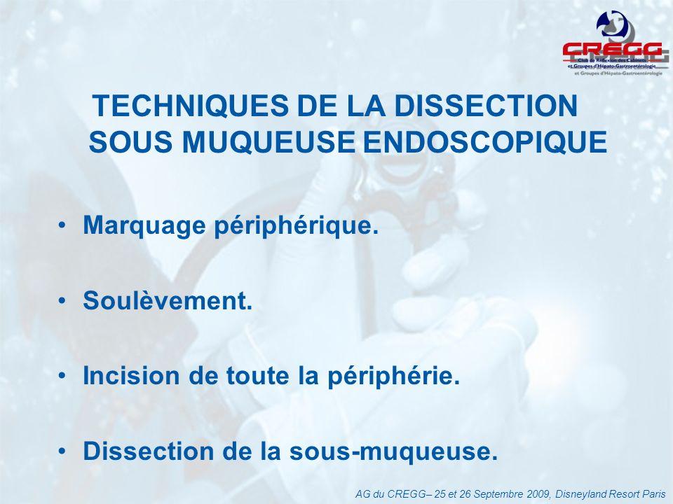 TECHNIQUES DE LA DISSECTION SOUS MUQUEUSE ENDOSCOPIQUE Marquage périphérique.