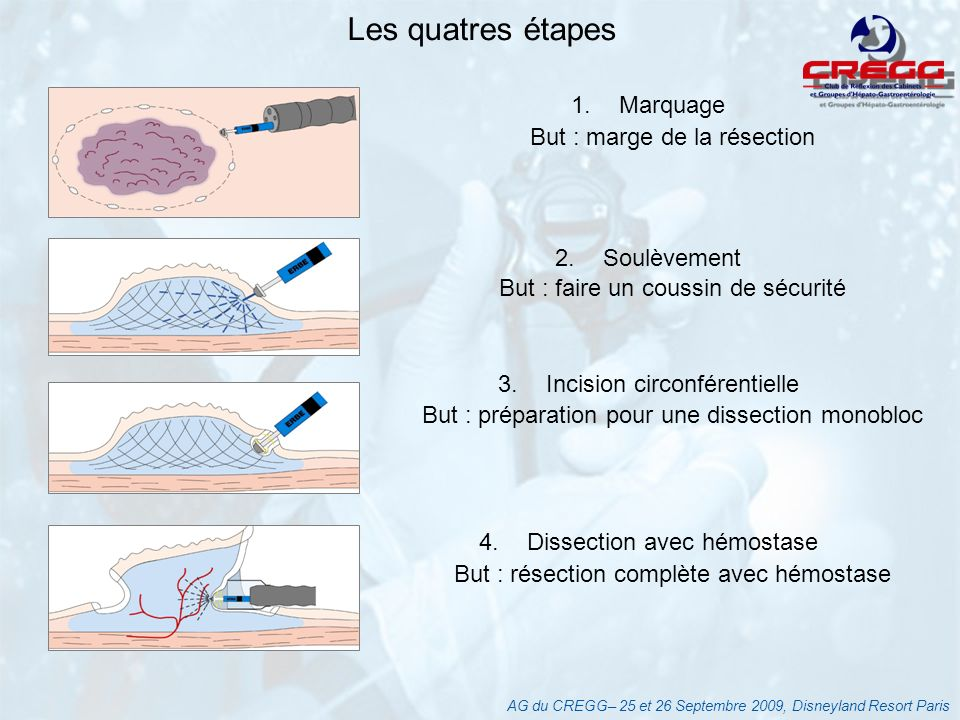 LIMITES DE LA DISSECTION SOUS MUQUEUSE ENDOSCOPIQUE EXTENSION EN PROFONDEUR ET EN SURFACE Endoscopie Chromo endoscopie.