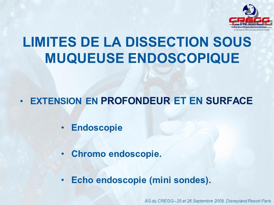 INDICATION DE LA DISSECTION SOUS MUQUEUSE ENDOSCOPIQUE Cancer gastrique : Les cancers intra muqueux différenciés sans ulcérations.