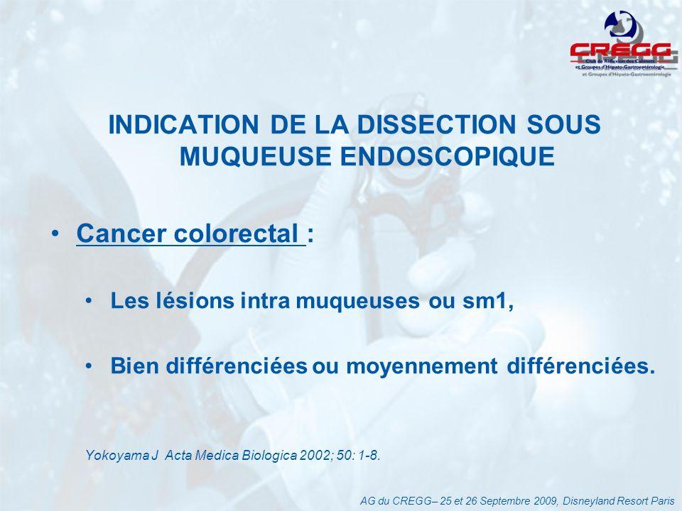 INDICATION DE LA DISSECTION SOUS MUQUEUSE ENDOSCOPIQUE Cancer colorectal : Les lésions intra muqueuses ou sm1, Bien différenciées ou moyennement différenciées.