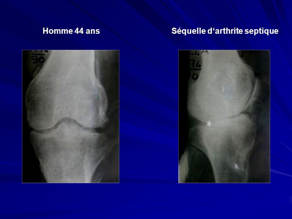 Homme 44 ansSéquelle darthrite septique