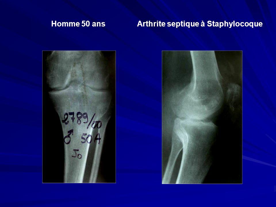 Homme 50 ansArthrite septique à Staphylocoque