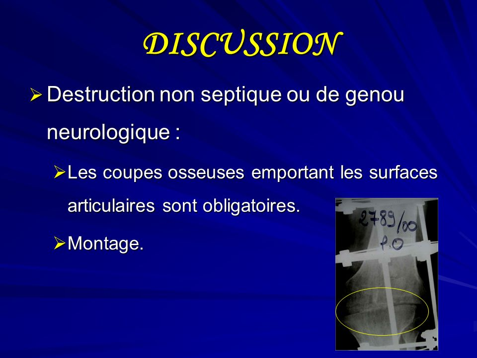 DISCUSSION Destruction non septique ou de genou neurologique : Destruction non septique ou de genou neurologique : Les coupes osseuses emportant les s