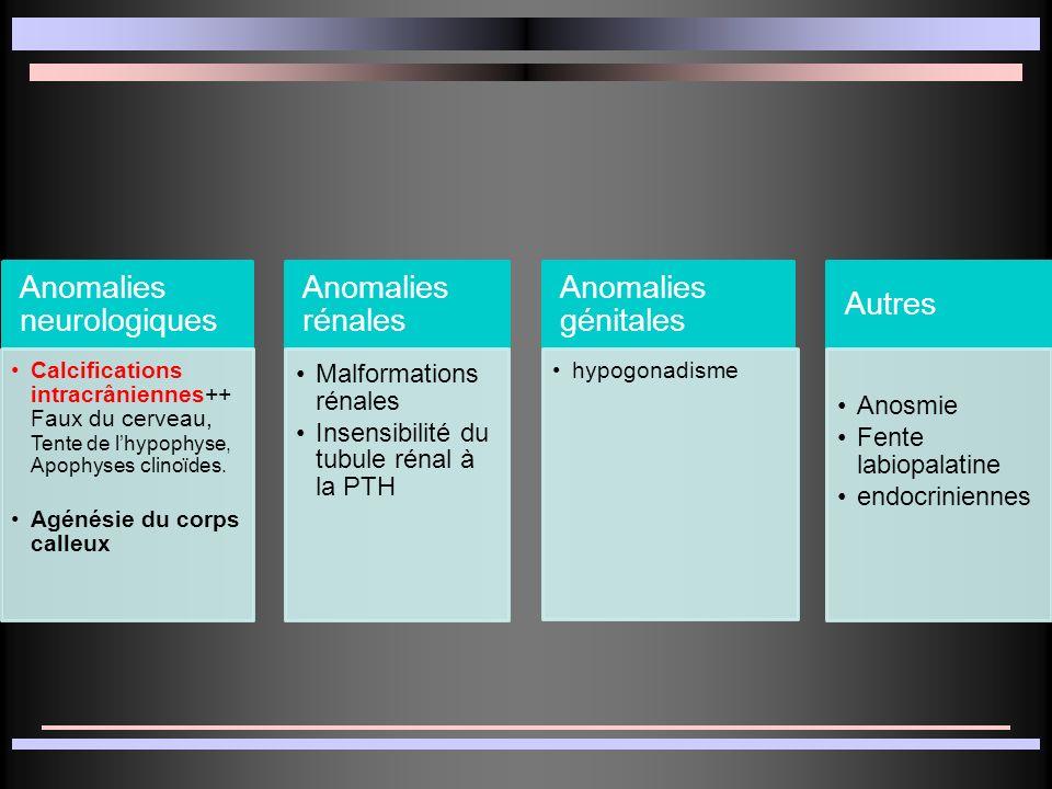 Anomalies neurologiques Calcifications intracrâniennes++ Faux du cerveau, Tente de lhypophyse, Apophyses clinoïdes. Agénésie du corps calleux Anomalie