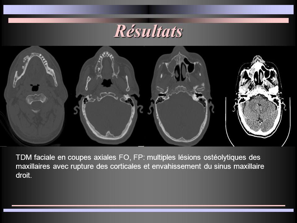 TDM faciale en coupes axiales FO, FP: multiples lésions ostéolytiques des maxillaires avec rupture des corticales et envahissement du sinus maxillaire