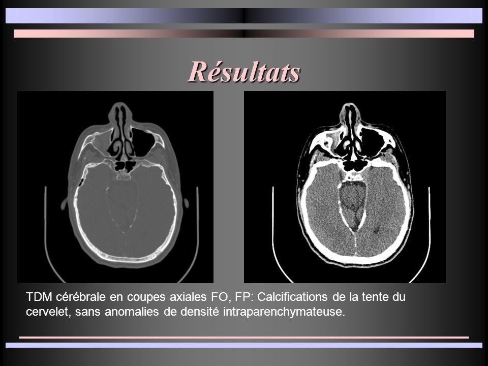 TDM cérébrale en coupes axiales FO, FP: Calcifications de la tente du cervelet, sans anomalies de densité intraparenchymateuse. Résultats