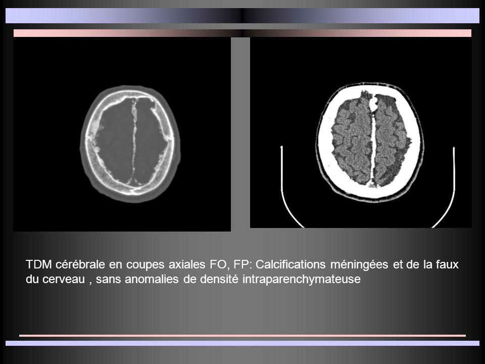 TDM cérébrale en coupes axiales FO, FP: Calcifications méningées et de la faux du cerveau, sans anomalies de densité intraparenchymateuse
