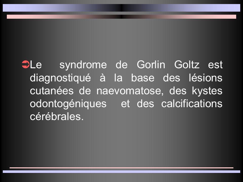 Le syndrome de Gorlin Goltz est diagnostiqué à la base des lésions cutanées de naevomatose, des kystes odontogéniques et des calcifications cérébrales