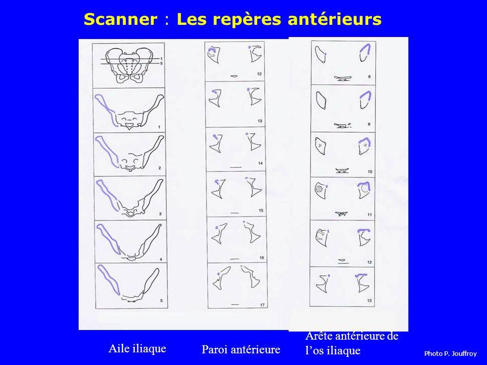 Aile iliaque Arête antérieure de los iliaque Paroi antérieure Scanner : Les repères antérieurs Photo P.
