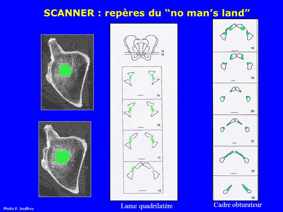 SCANNER : repères du no mans land Toit Lame quadrilatère Cadre obturateur Photo P. Jouffroy