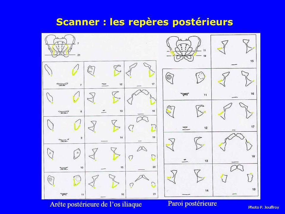 Scanner : les repères postérieurs Arête postérieure de los iliaque Paroi postérieure Photo P.