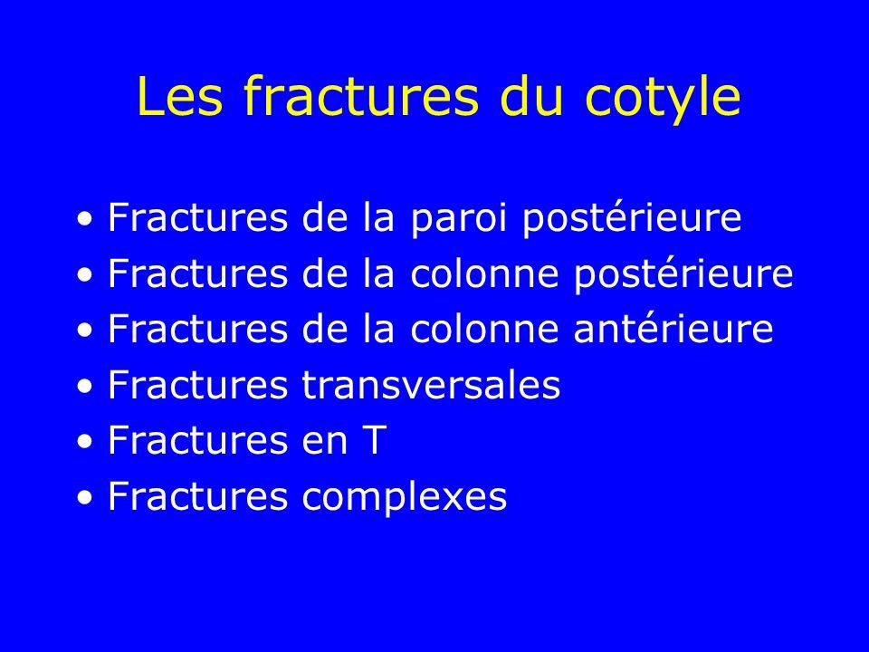 Les fractures du cotyle Fractures de la paroi postérieure Fractures de la colonne postérieure Fractures de la colonne antérieure Fractures transversales Fractures en T Fractures complexes