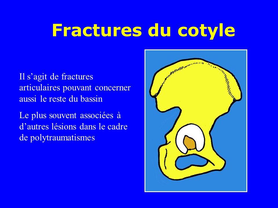 Il sagit de fractures articulaires pouvant concerner aussi le reste du bassin Le plus souvent associées à dautres lésions dans le cadre de polytraumatismes