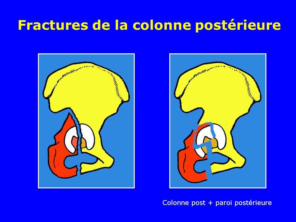 Fractures de la colonne postérieure Colonne post + paroi postérieure