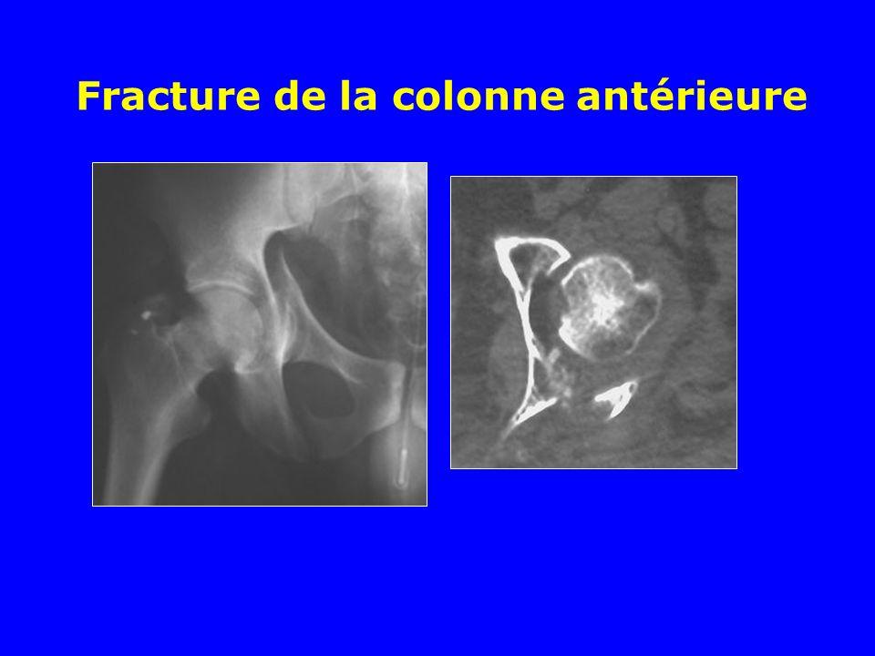 Fracture de la colonne antérieure