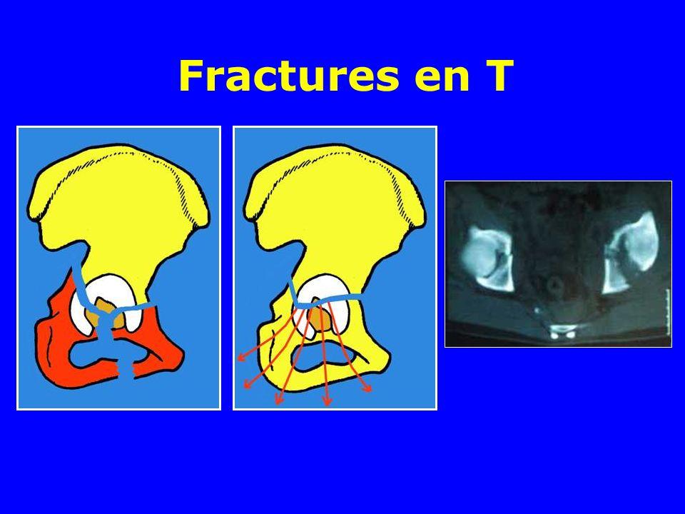 Fractures en T