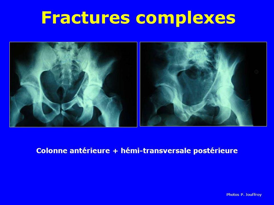 Colonne antérieure + hémi-transversale postérieure Fractures complexes Photos P. Jouffroy