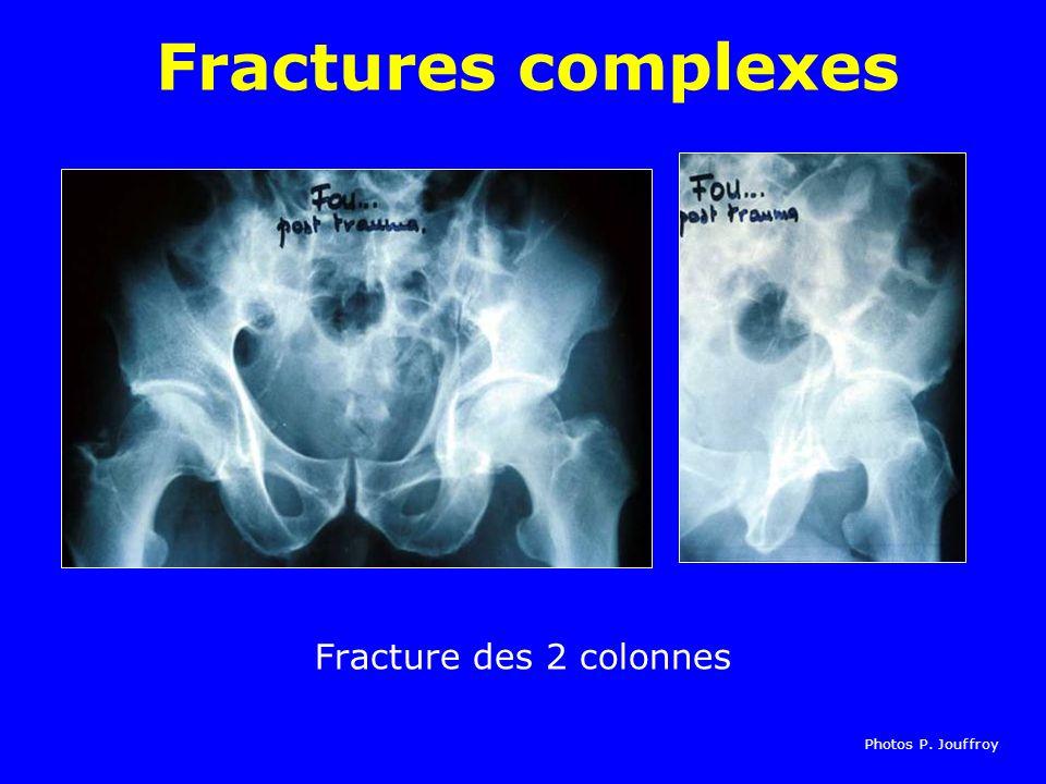 Fracture des 2 colonnes Fractures complexes Photos P. Jouffroy