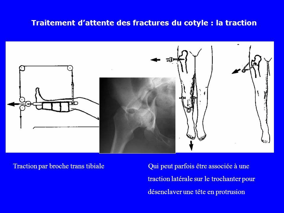 Traitement dattente des fractures du cotyle : la traction Traction par broche trans tibiale Qui peut parfois être associée à une traction latérale sur le trochanter pour désenclaver une tête en protrusion