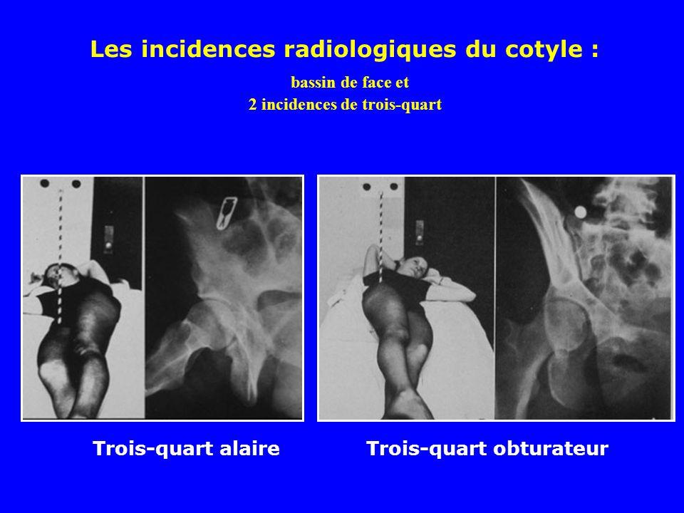 Les incidences radiologiques du cotyle : bassin de face et 2 incidences de trois-quart Trois-quart alaireTrois-quart obturateur