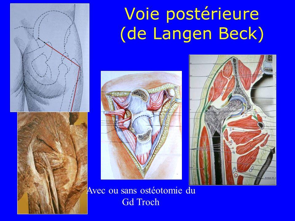 Voie postérieure (de Langen Beck) Avec ou sans ostéotomie du Gd Troch