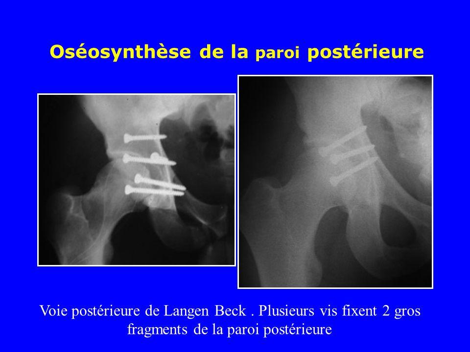 Oséosynthèse de la paroi postérieure Voie postérieure de Langen Beck.