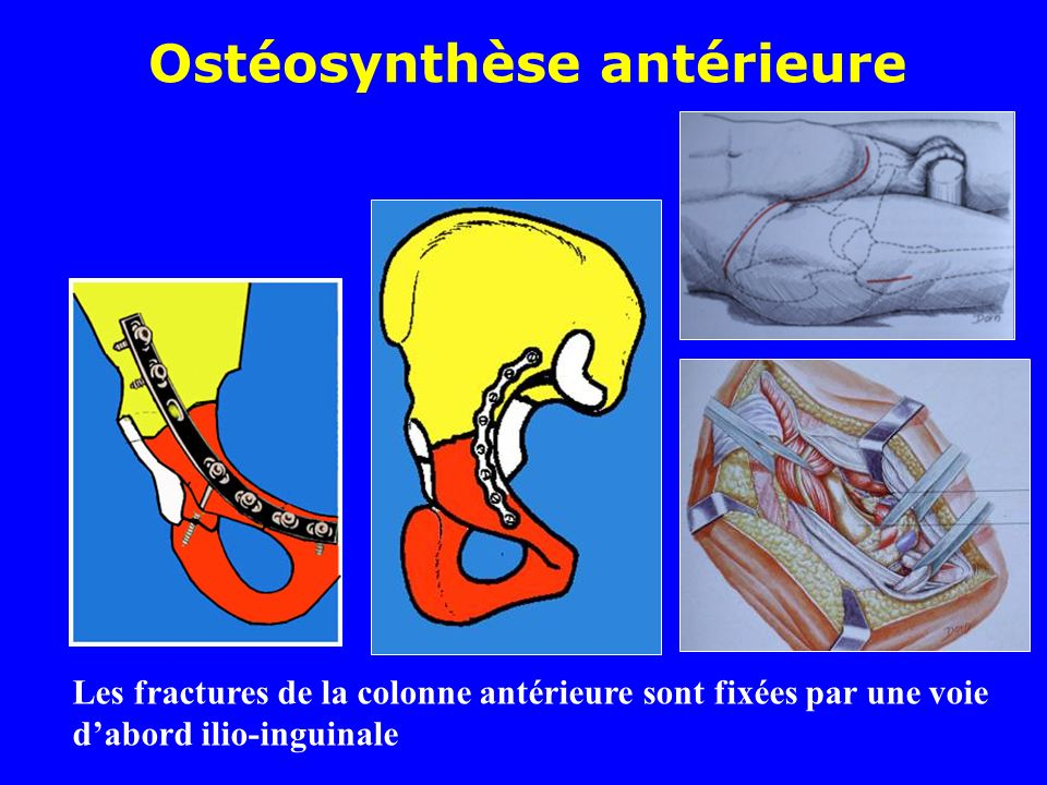 Ostéosynthèse antérieure Les fractures de la colonne antérieure sont fixées par une voie dabord ilio-inguinale