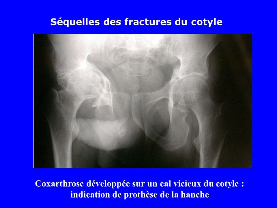 Séquelles des fractures du cotyle Coxarthrose développée sur un cal vicieux du cotyle : indication de prothèse de la hanche