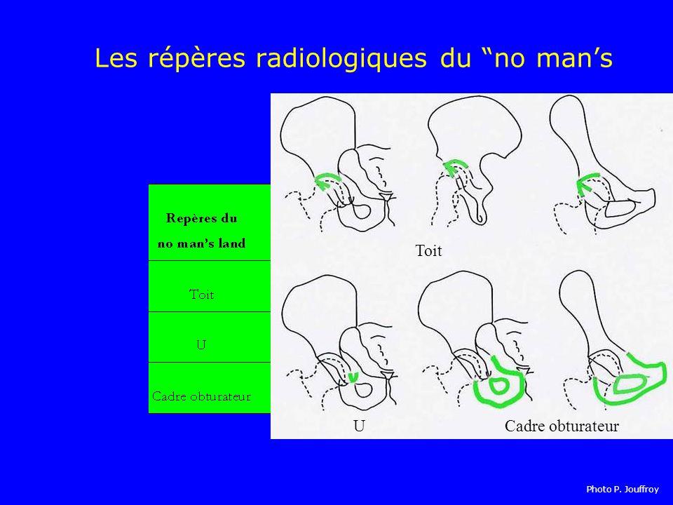 Les répères radiologiques du no mans Toit UCadre obturateur Photo P. Jouffroy