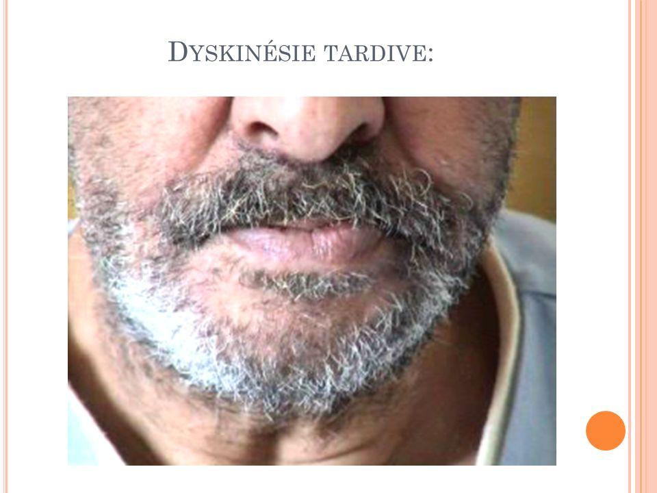 D YSKINÉSIE TARDIVE :