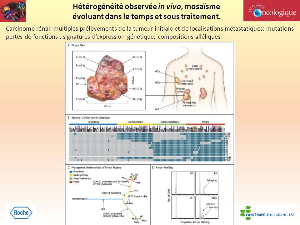 Hétérogénéité observée in vivo, mosaïsme évoluant dans le temps et sous traitement. Carcinome rénal: multiples prélèvements de la tumeur initiale et d