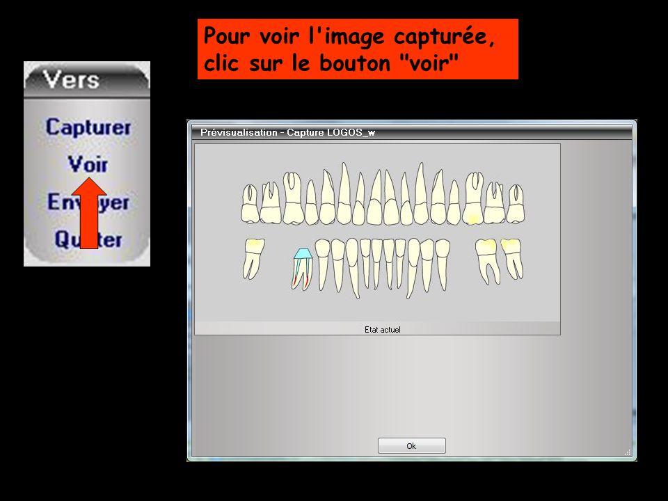 Lorsque l image convient Clic sur envoyer pour l adresser au dossier patient en cours, où elle sera stockée dans le module photo