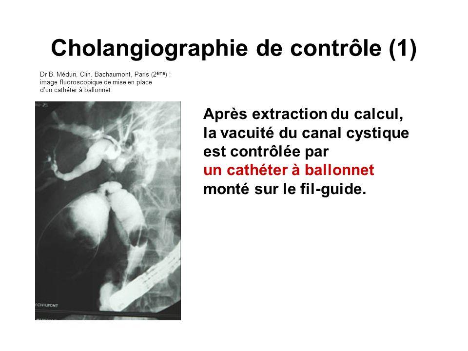 Après extraction du calcul, la vacuité du canal cystique est contrôlée par un cathéter à ballonnet monté sur le fil-guide. Cholangiographie de contrôl