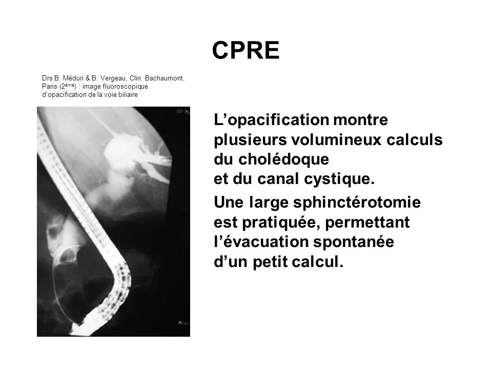Lopacification montre plusieurs volumineux calculs du cholédoque et du canal cystique. Une large sphinctérotomie est pratiquée, permettant lévacuation